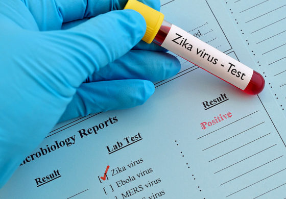 CARPHA Must Receive Zika Blood Samples Within 5 Days of First Symptom