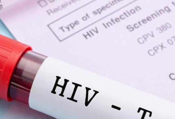 UNAIDS deletes reference to high local HIV figures