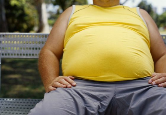 Obesity rate in Barbados high – report