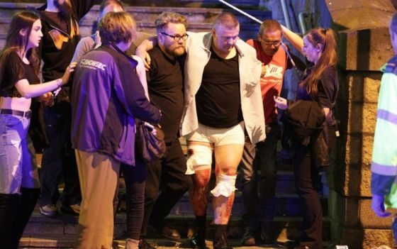 Manchester: 22 dead and 59 hurt in suicide bombing