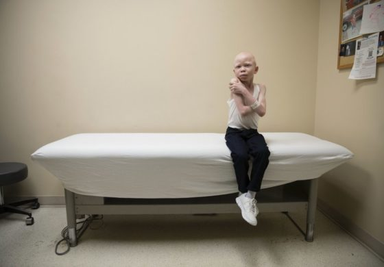 New limbs for growing bodies: Mutilated albinos get refitted