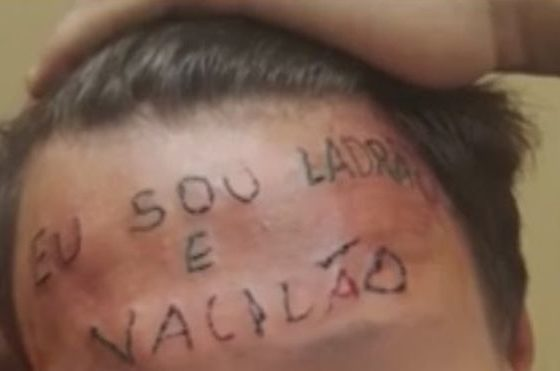 Brazil teen tattooed with 'I am a thief'