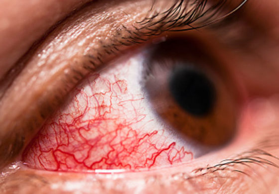 Ministry of Health works to curb red eye spread