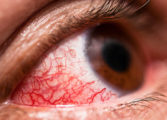 "St Jude Hospital reports increase in ""red eye"" cases in the south"