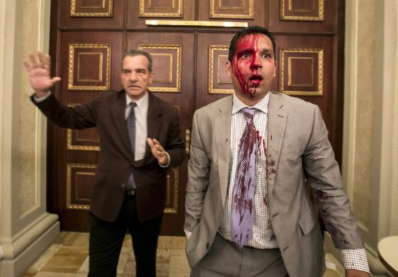 Venezuela gov't backers beat up opposition lawmakers