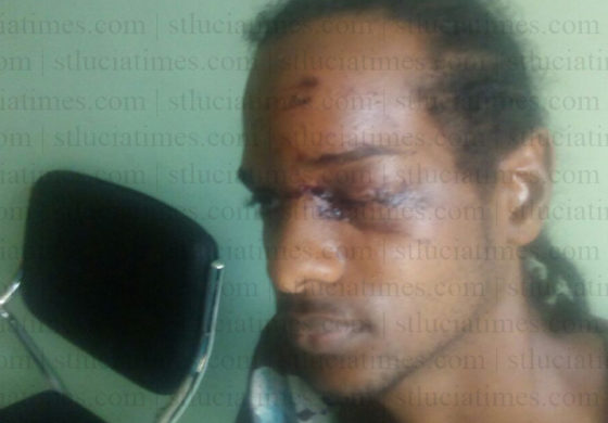 Hospital Road resident attacked by bandits