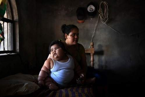 Mexican toddler weighing 28 kilos baffles doctors