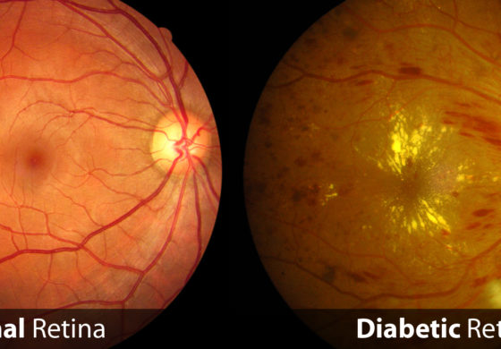 Ministry working to reduce blindness in diabetic patients