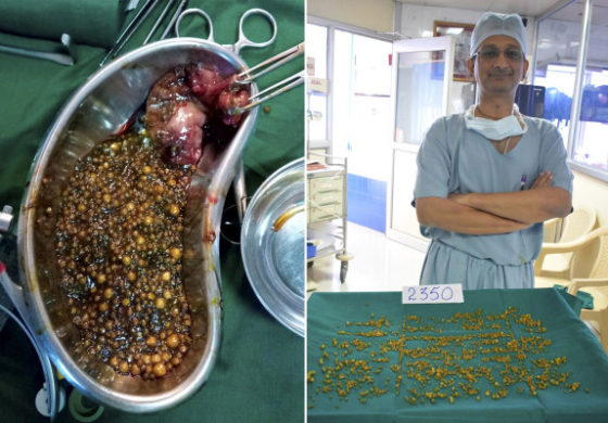 Woman's abdominal pain turned out to be 2,350 gallstones