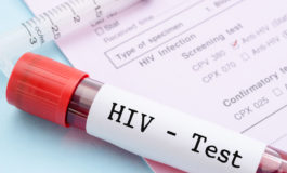 HIV data collection a challenge for OECS
