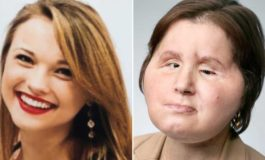 Woman gets 'second chance' with face transplant