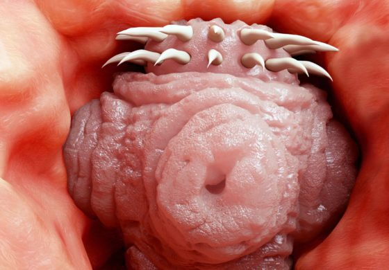Tapeworm was 'still swimming' when removed from man's brain